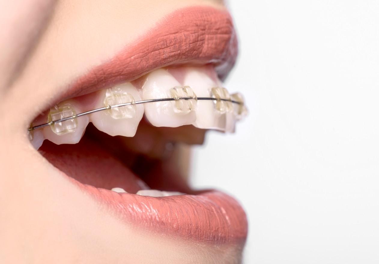 ارتودنسی قبل از انجام ایمپلنت (کاشت دندان) یا بعد از آن؟