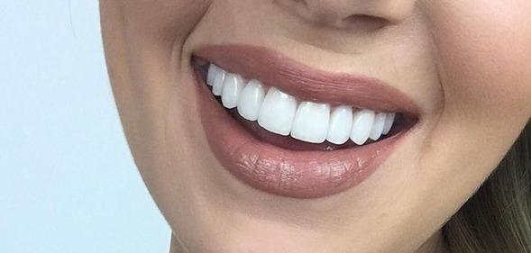 ترمیم زیبایی دندان با کامپوزیت