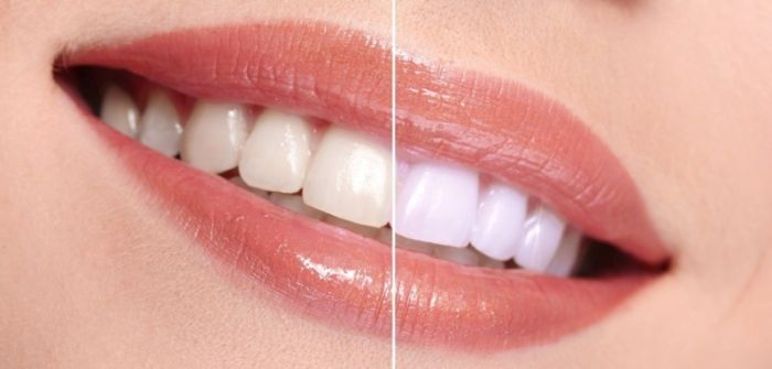 تفاوت بلیچینگ و لمینت دندان