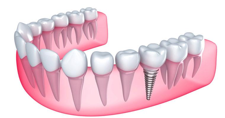 چه کسانی نباید دندان هایشان را ایمپلنت کنند؟