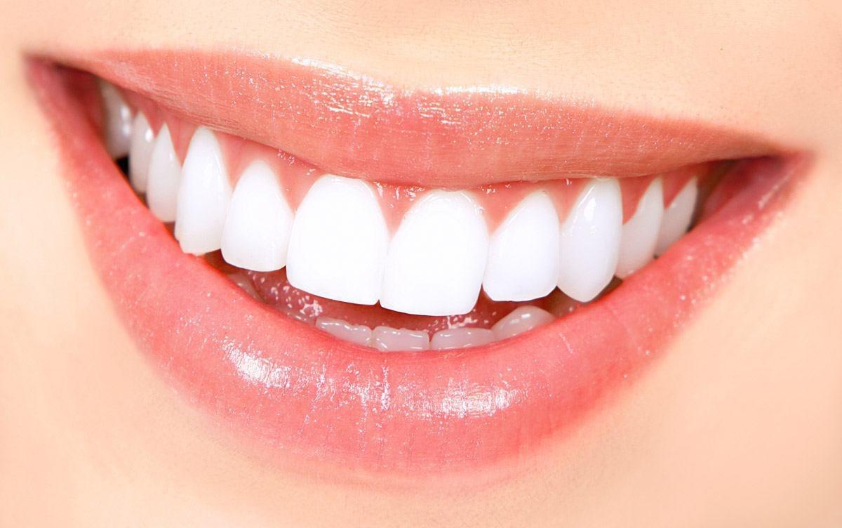 چطور لبخند خود را به لبخند زیباتر کنیم؟