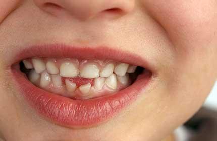 چرا باید دندان های شیری را حفظ کرد؟