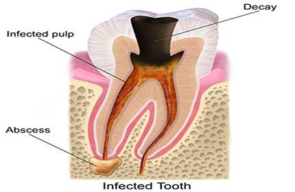 آبسه دندان چیست؟