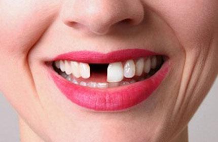 بی دندان شدن