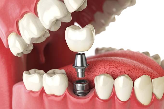 دندان مصنوعی متحرک و ایمپلنت