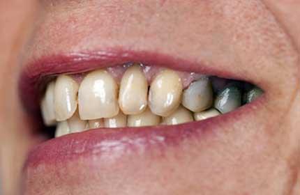 پوسیدگی مخفی دندان
