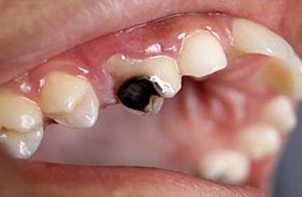پوسیدگی دندان : علل و شیوه درمان
