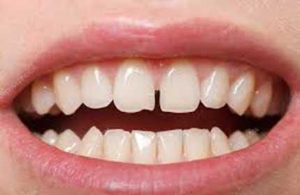 فاصله بین دندان ها (دياستم)