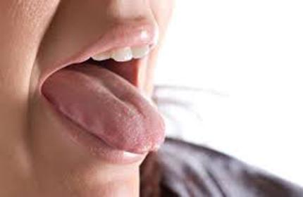 خشکی دهان (علل و درمان)