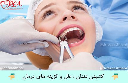 کشیدن دندان : علل و گزینه های درمان