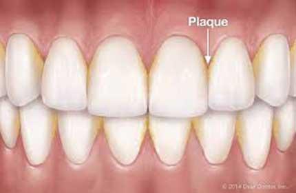 پلاک دندان چیست؟ راه کارهای مقابله با ایجاد پلاک بر روی دندان چیست؟