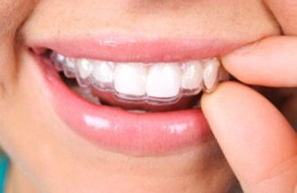 پلاک دندانی