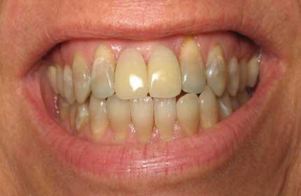 دندان های لکه دار