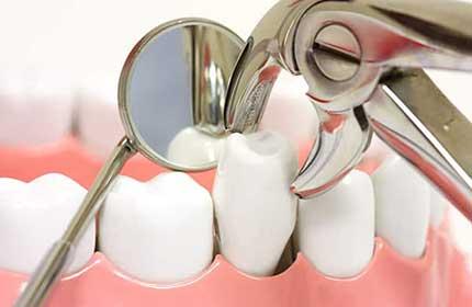 بعد از کشیدن دندان چه باید کرد؟