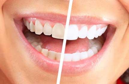 سفيد كردن دندان  (Bleaching)