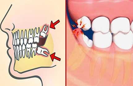 چرا باید دندان عقل را جراحی کنیم؟