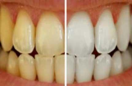 چرا رنگ دندانها زرد میشود؟